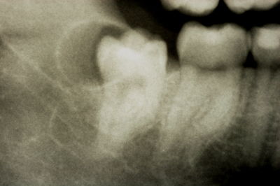 A bonus problem caused by the wisdom tooth